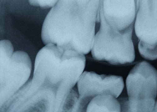 Popovich Dental - Crown Point, IN - Thumb 5